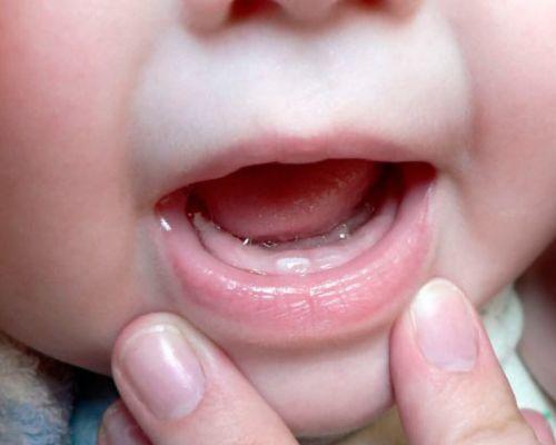 Симптомы прорезывания зубов у детей