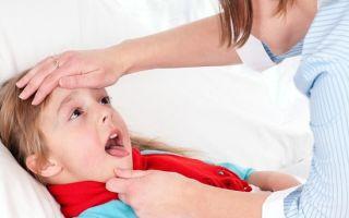 Народные средства от ангины у детей