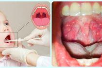 Герпесная ангина: симптомы и лечение у детей