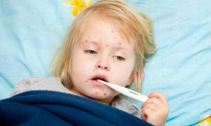 Осложнения после ветрянки у ребенка