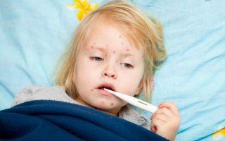 Осложнения после ветрянки у ребенка.