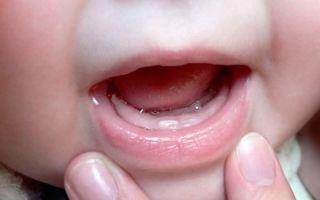 Симптомы прорезывания зубов у детей.