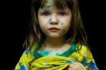 Ветряная оспа у детей — симптомы