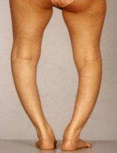 рахит кривые ноги