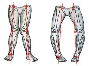 кривые ноги при рахите