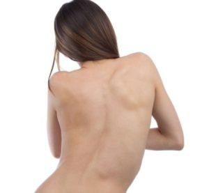 кривая спина