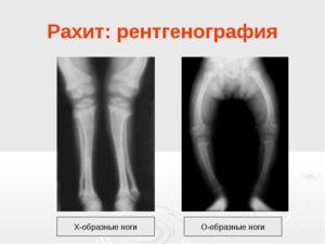 рентген рахит