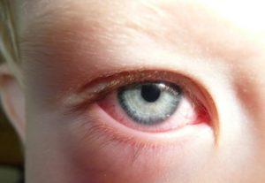 аллергический конъюктивит у ребенка