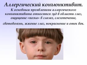аллергический конъюктивит