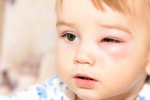 Лечение кулицидоза у детей