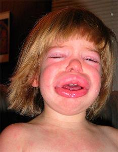 осложнения аллергии