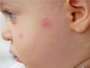 укус комара на лице