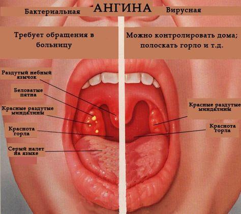 Антибиотики при ангине у ребенка