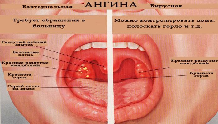 герпесная ангина