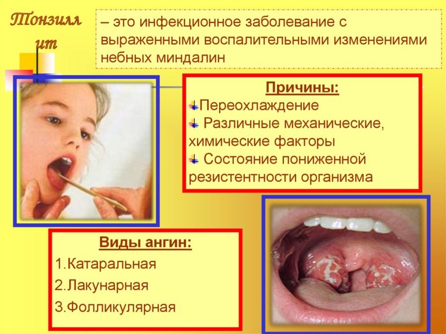 Гнойная ангина у ребенка 4 лет высокая температура thumbnail