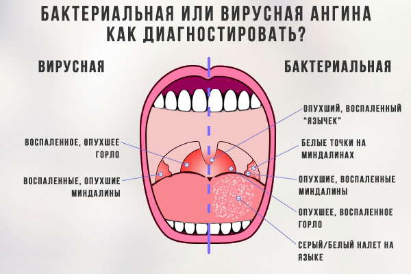 вирусная ангина у ребенка