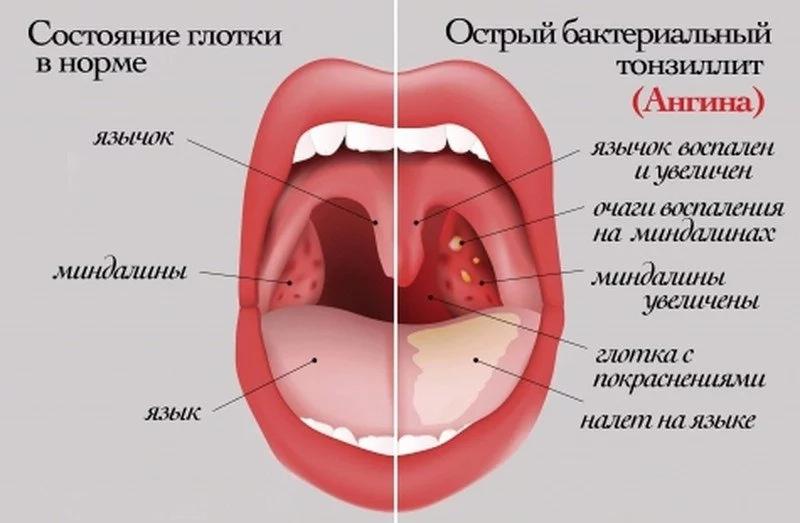 Симптомы детской ангины