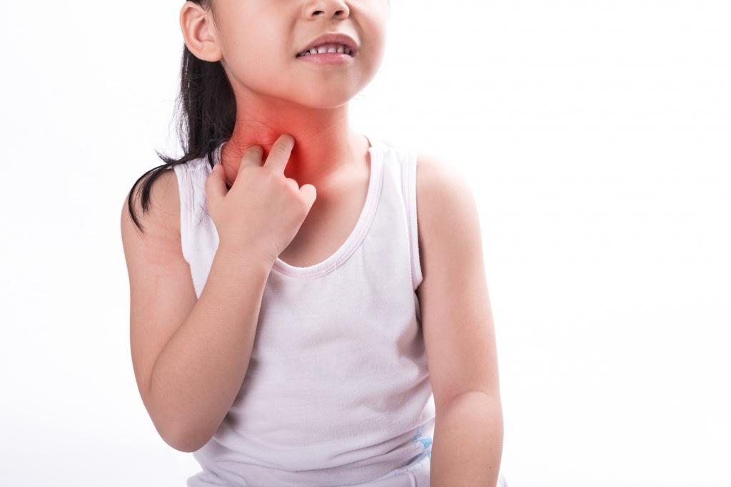 ребенок расчесывает аллергию