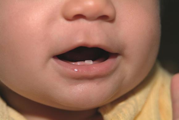 режутся зубы температура