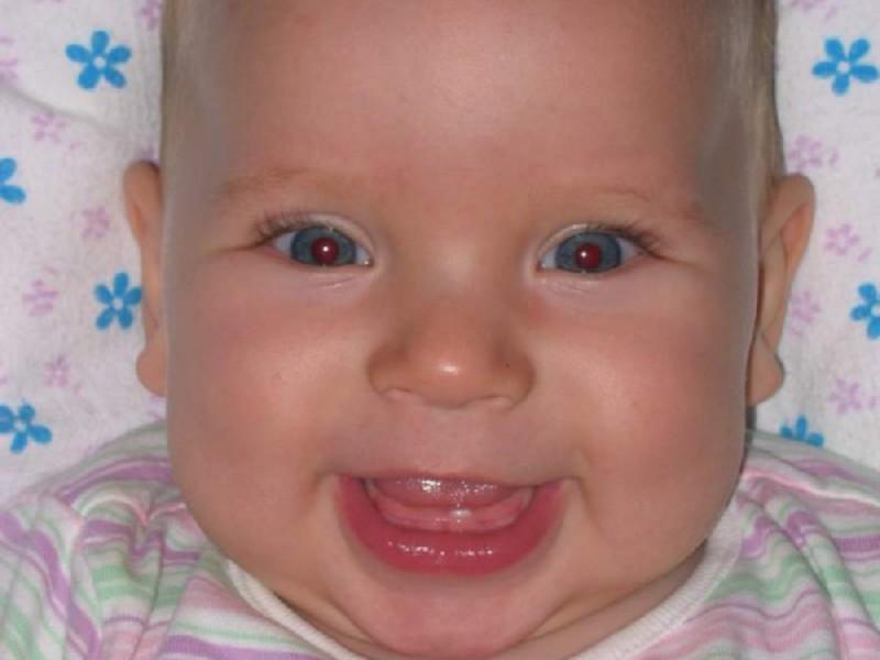 когда режутся последние молочные зубы