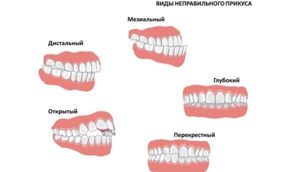 проблемы прорезывания зубов