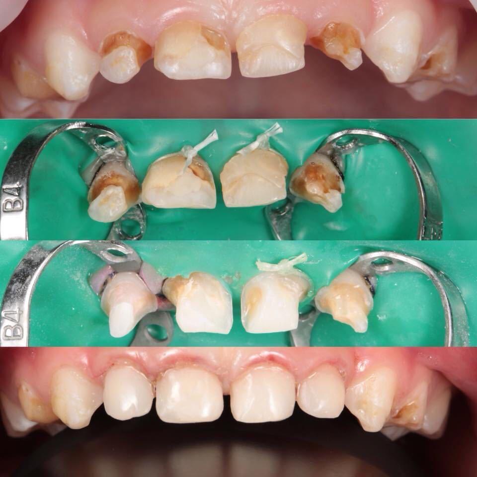 серебрение зубов комаровский