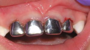 серебрение зубов методика
