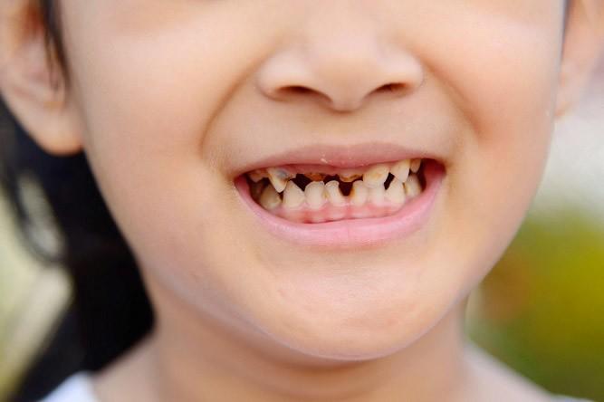 кариес молочных зубов серебрение