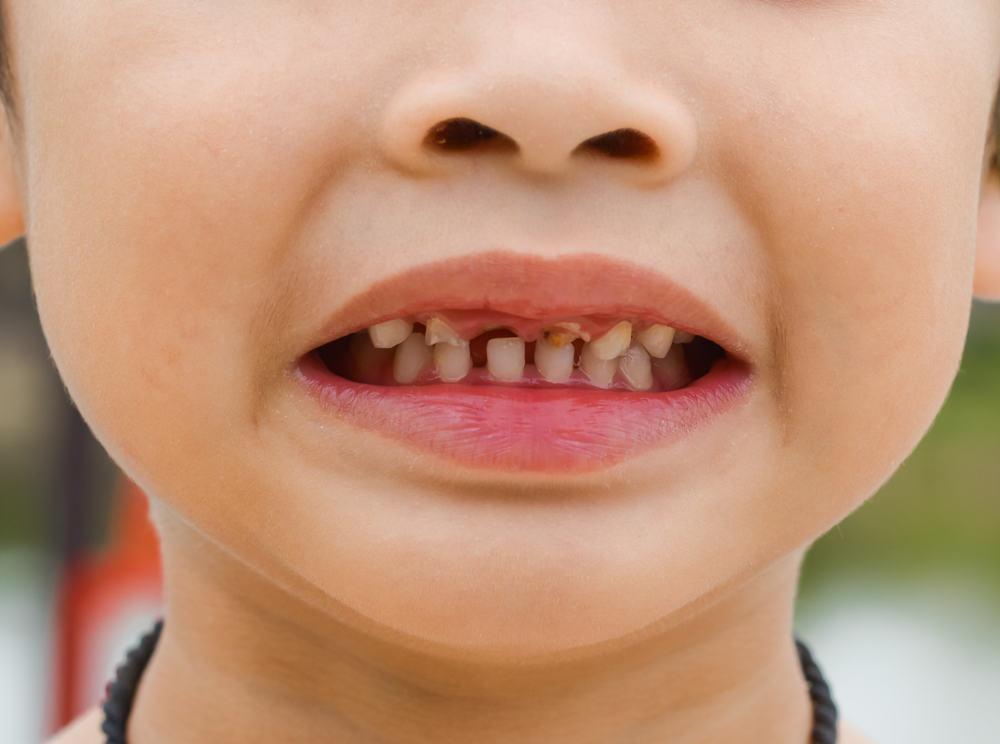 серебрение молочных зубов альтернатива