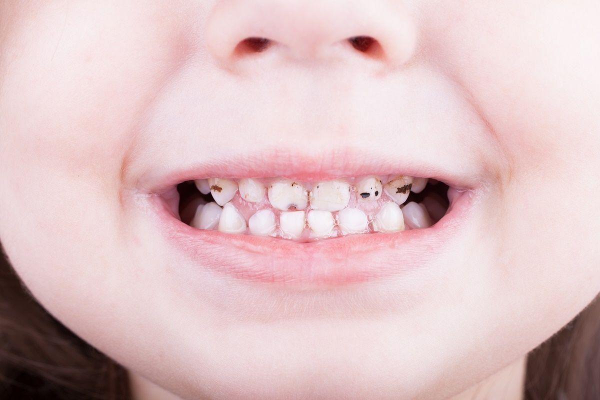 черные зубы после серебрения