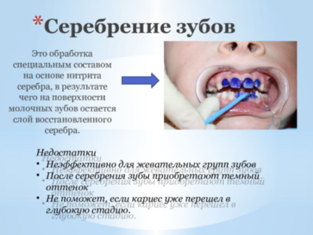 серебрение зубов альтернатива
