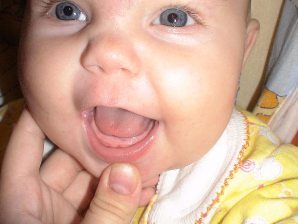 Гель для десен при прорезывании зубов