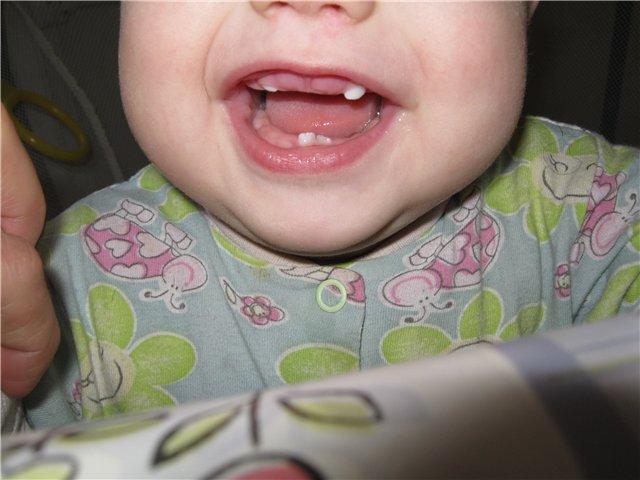 как выглядит десна перед прорезыванием зубов