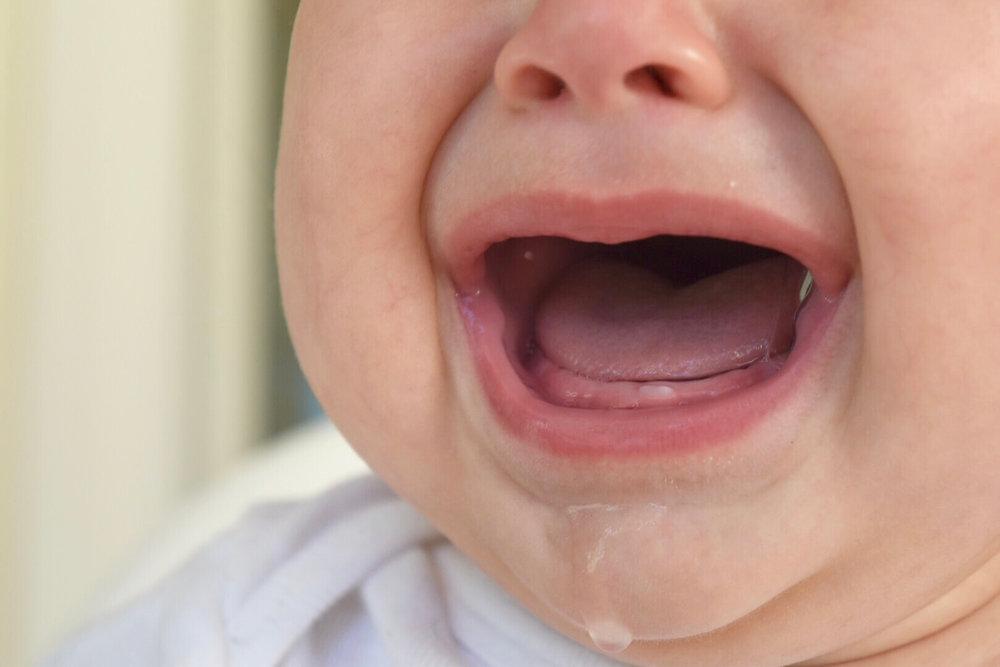 какая десна при прорезывании зубов